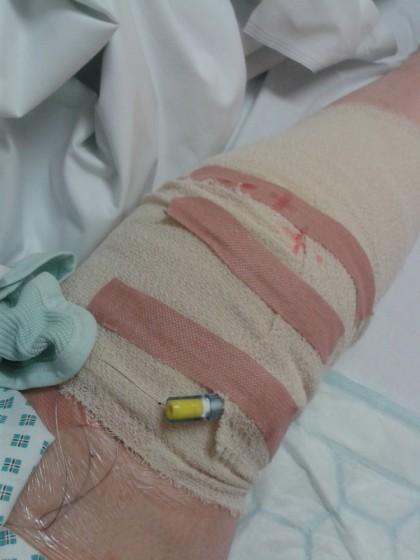 bandage after TKR