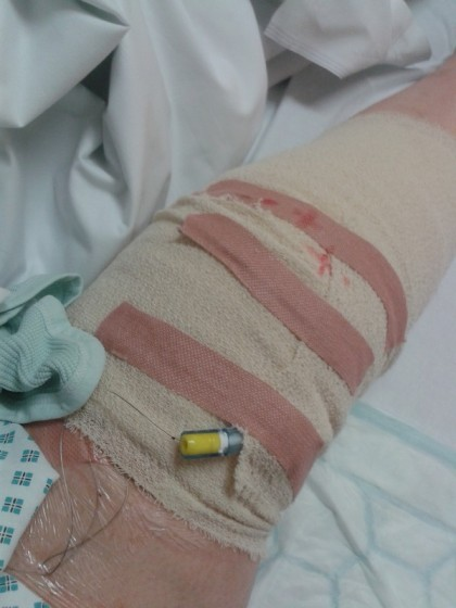 bandage after TKR