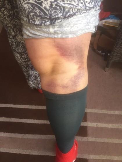 bruising afterr TKR,